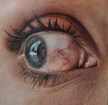 hyperaemia